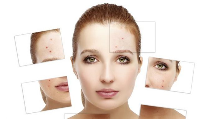 Acne skin care tips