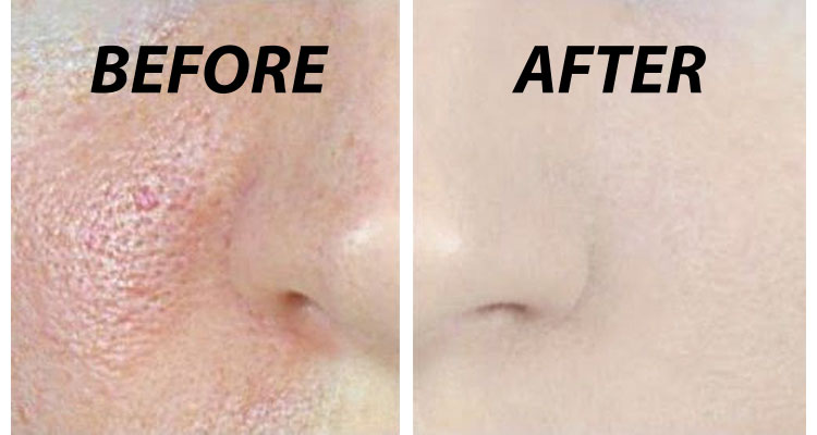 close pores Naturally